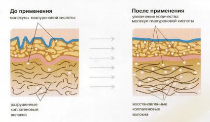 savoskin_2.tif